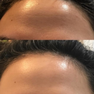 Before and After Dehydrated Skin results