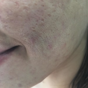 Dry and dehydrated skin