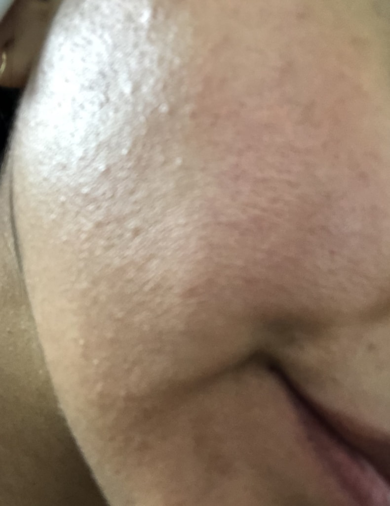 Example of bumpy skin from dehydration
