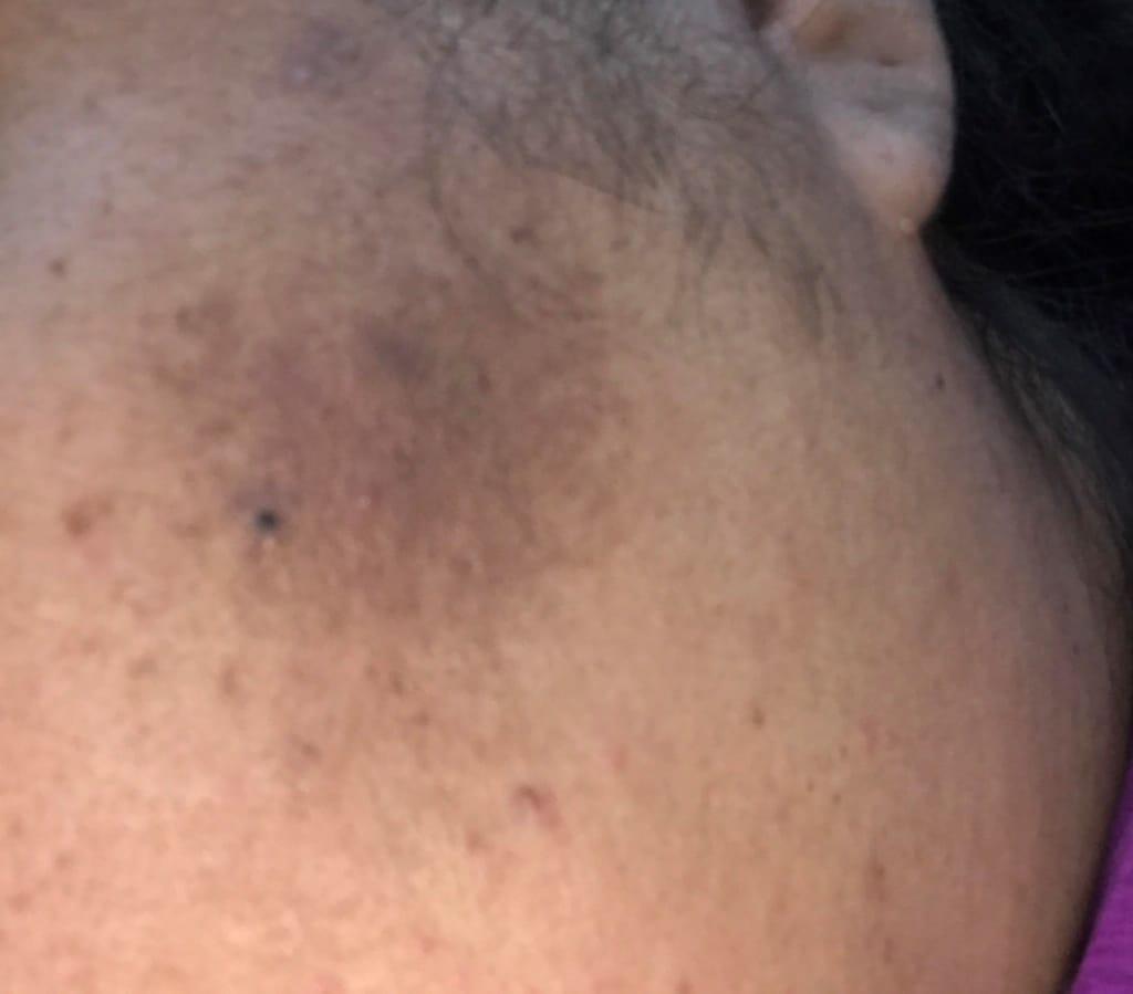 Melasma dark spots