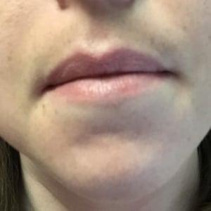 Melasma on upper lip