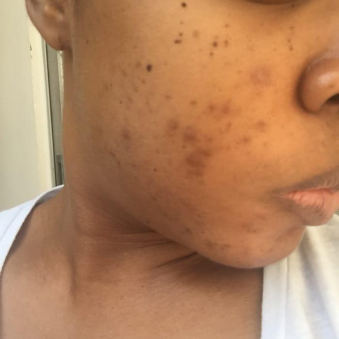 P.I.H. skin condition