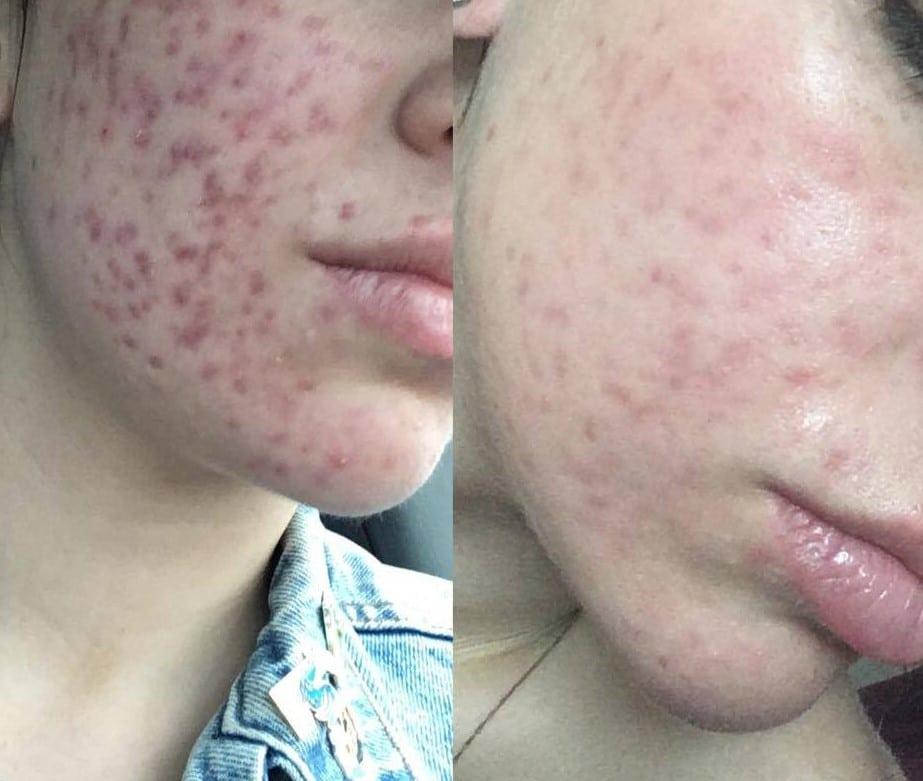PIE acne