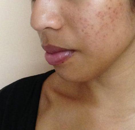 What Post inflammatory hyperpigmentation looks like