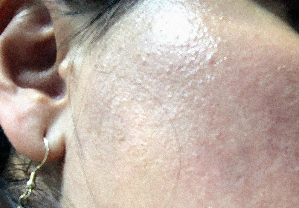 Do You Have Fungal Acne Learn How To Treat It Safely Leaked Beauty